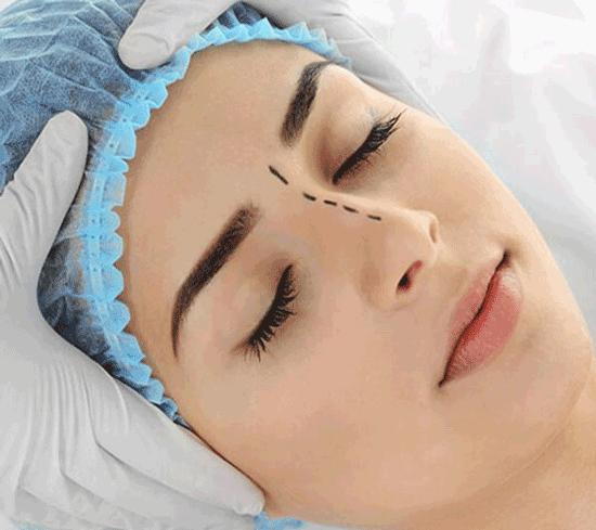 ترمیم بینی جراحی شده؛ چرا بینی شما نیاز به ترمیم دارد؟